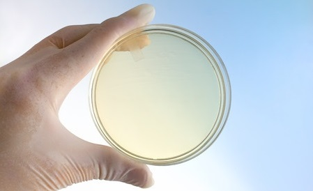 37543212 - hand of microbiologist holding petri dish at background blue and white / scientist with a hand holding a petri dish